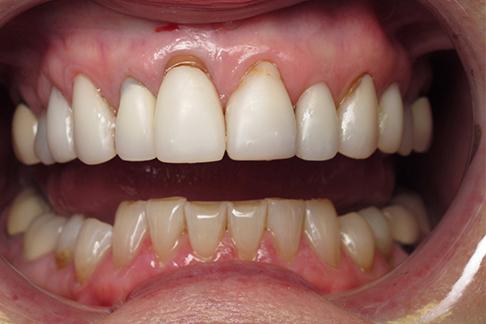 Cousin before pic - Sunshine Dentists in Burke, VA
