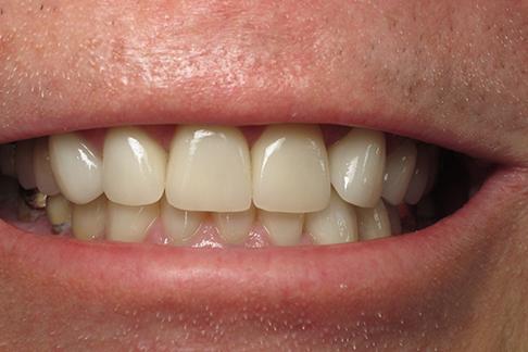 Glen after pic - Sunshine Dentists in Burke, VA