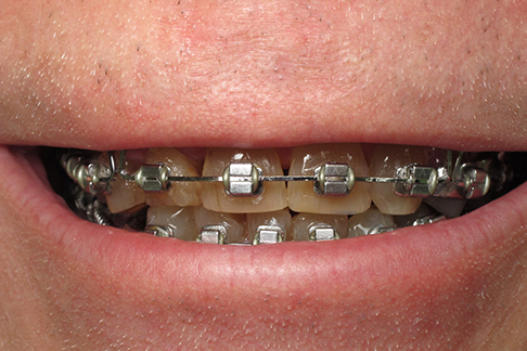 Glen before pic - Sunshine Dentists in Burke, VA