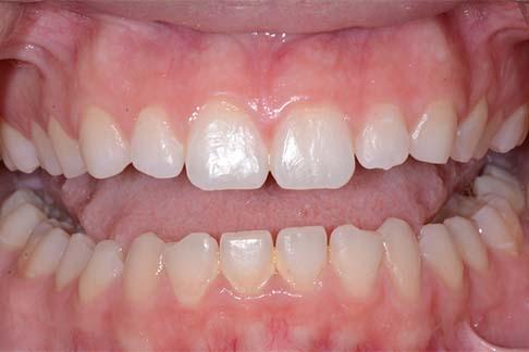 Carliegh before pic - Sunshine Dentists in Burke, VA