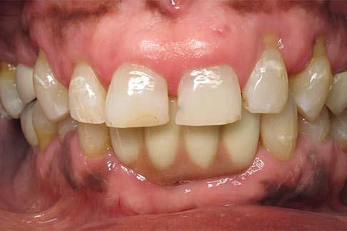 Johnson before pic - Sunshine Dentists in Burke, VA