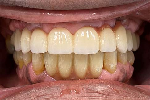 Johnson after pic - Sunshine Dentists in Burke, VA