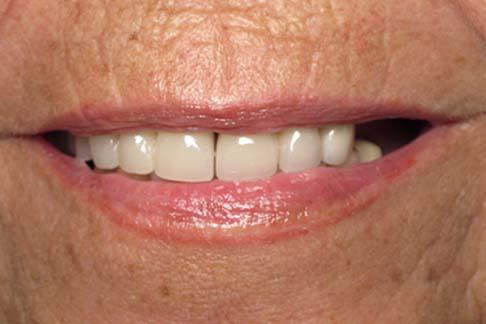 Leila before pic - Sunshine Dentists in Burke, VA