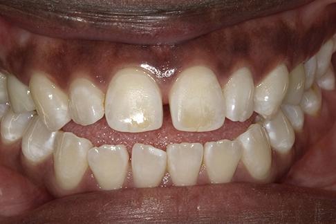 Sunshine Dentists in Burke, VA